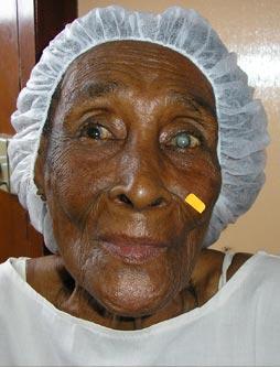 Kirurgia-kanpaina  Esmeraldasen  (Ekuador)